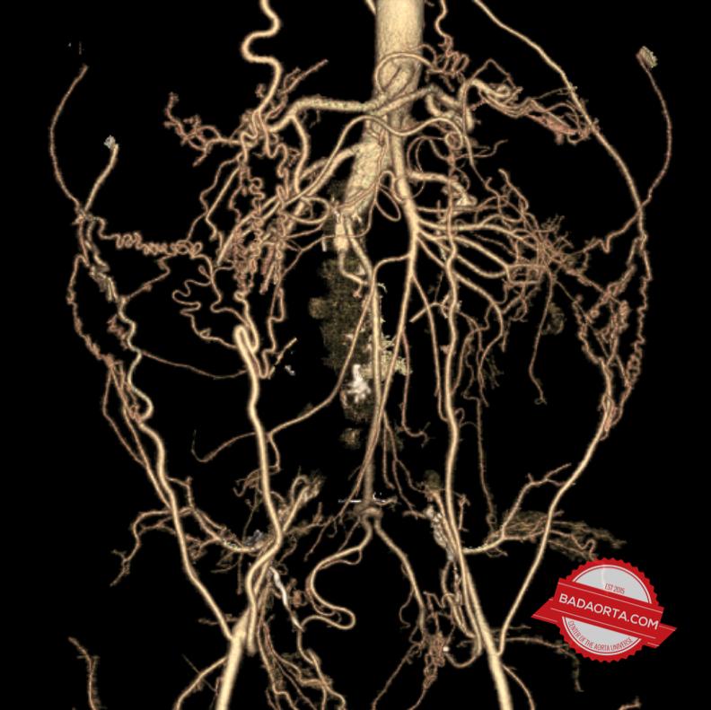 Total aorto-iliac occlusion (Leriche Syndrome)