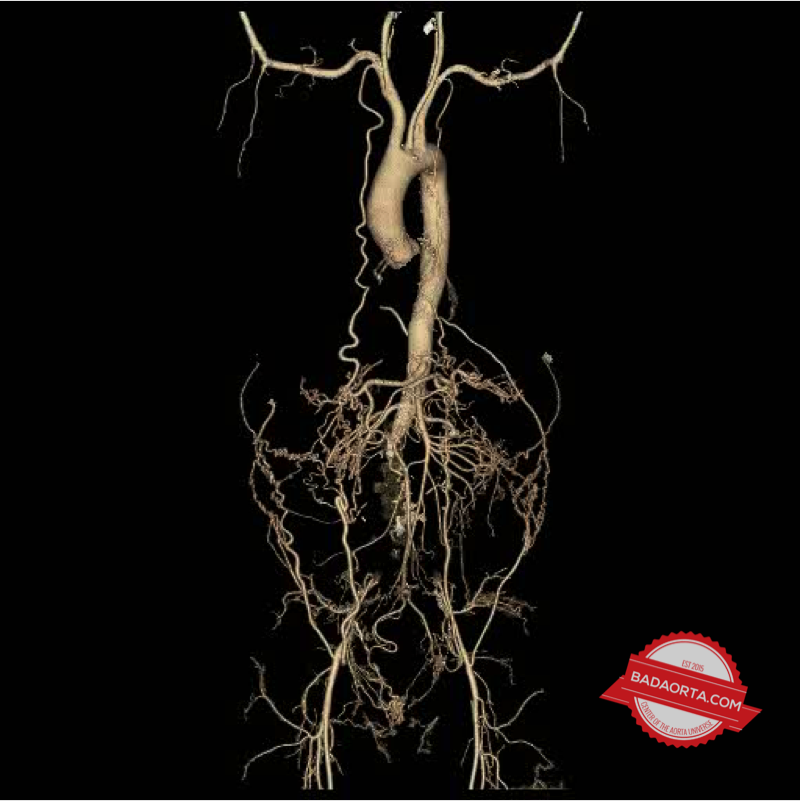 CAT scan of patient with Leriche Syndrome