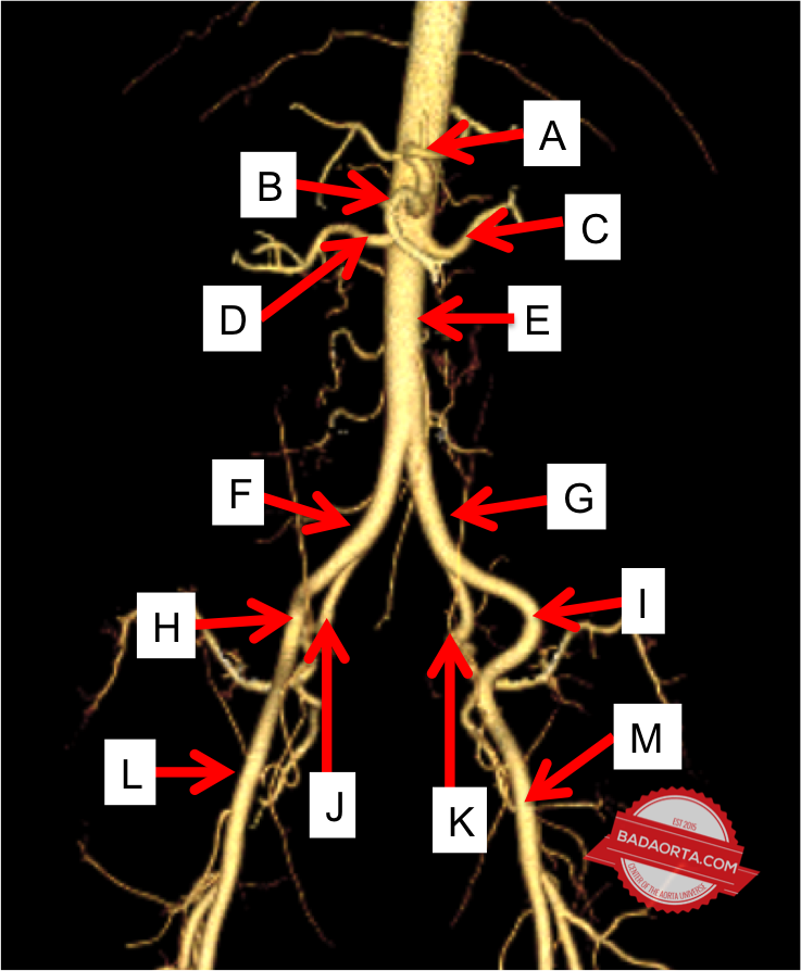 Anatomy of the Abdominal Aorta