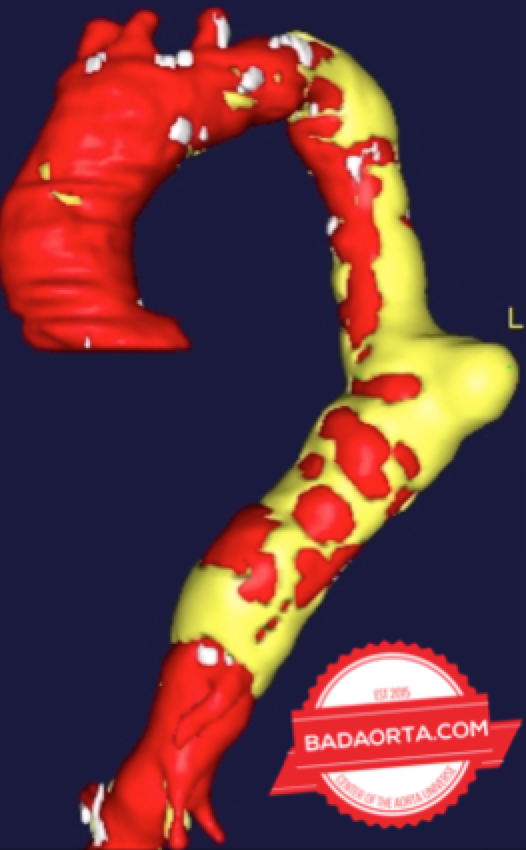 Aneurysm of the descending thoracic aorta