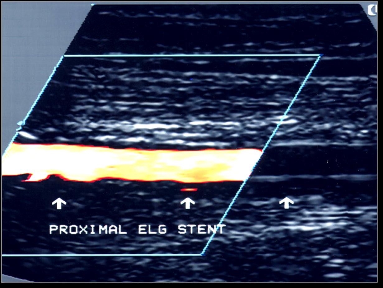 Abdominal duplex ultrasound