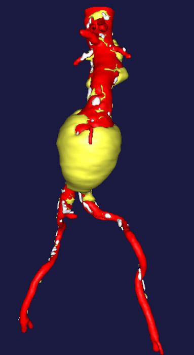 image of abdominal aortic aneurysm
