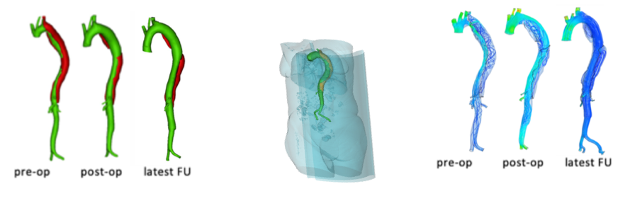 Computative Flow Dynamics of Aortic Dissections