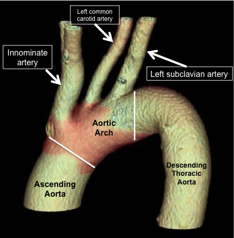 Aortic arch with great vessels (labeled)