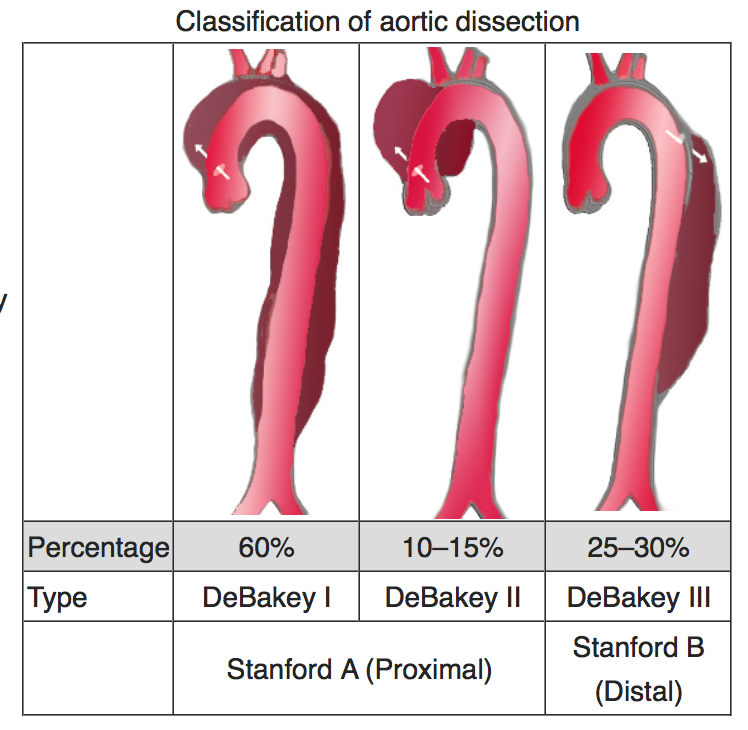 Aortic dissection image, source: Wikipedia