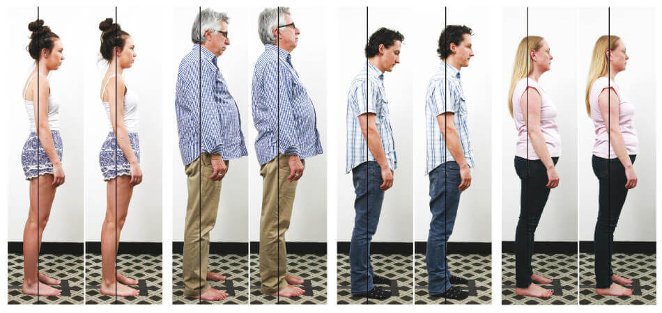 Posture HQ Chiropractic Results