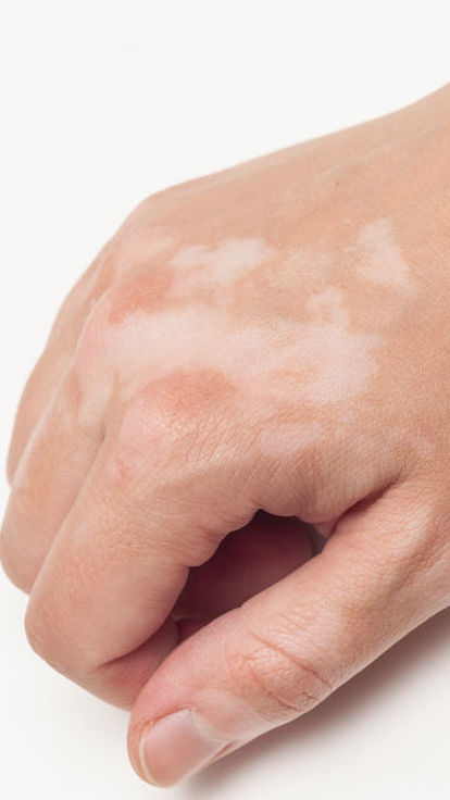 Vitiligo Re-pigmentation Treatments