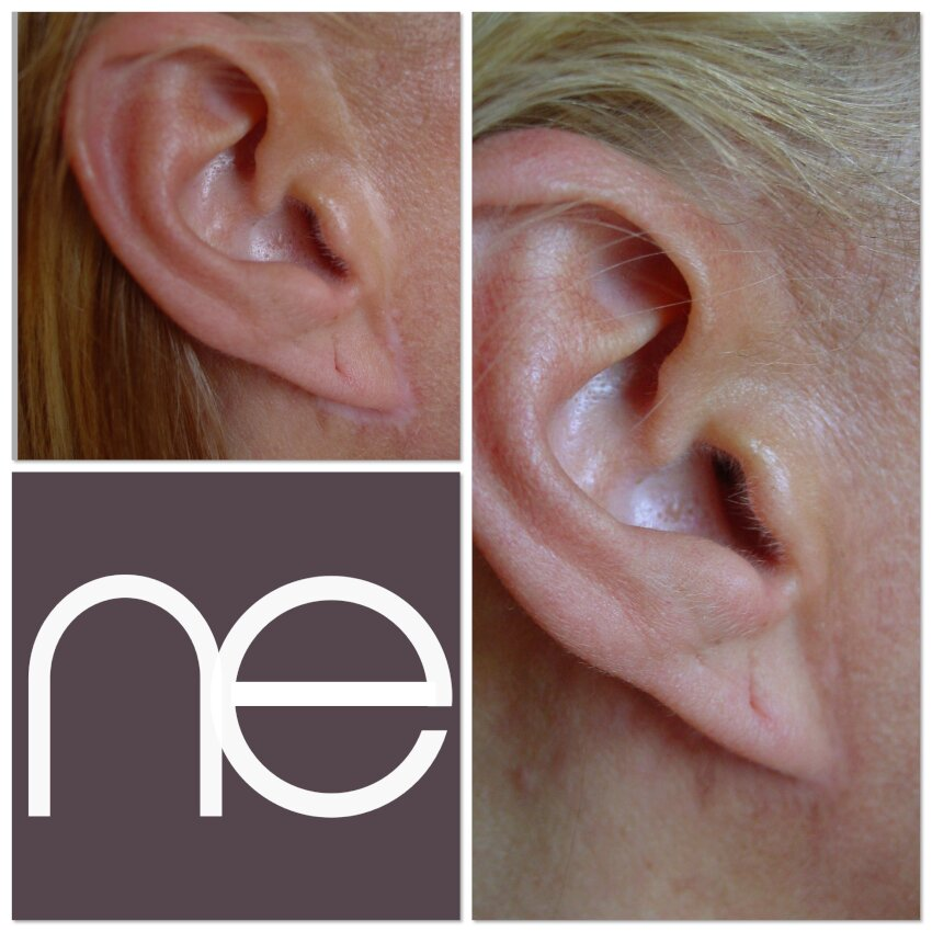 Natural Enhancement Semi Permanent Scar Camouflage Before And After
