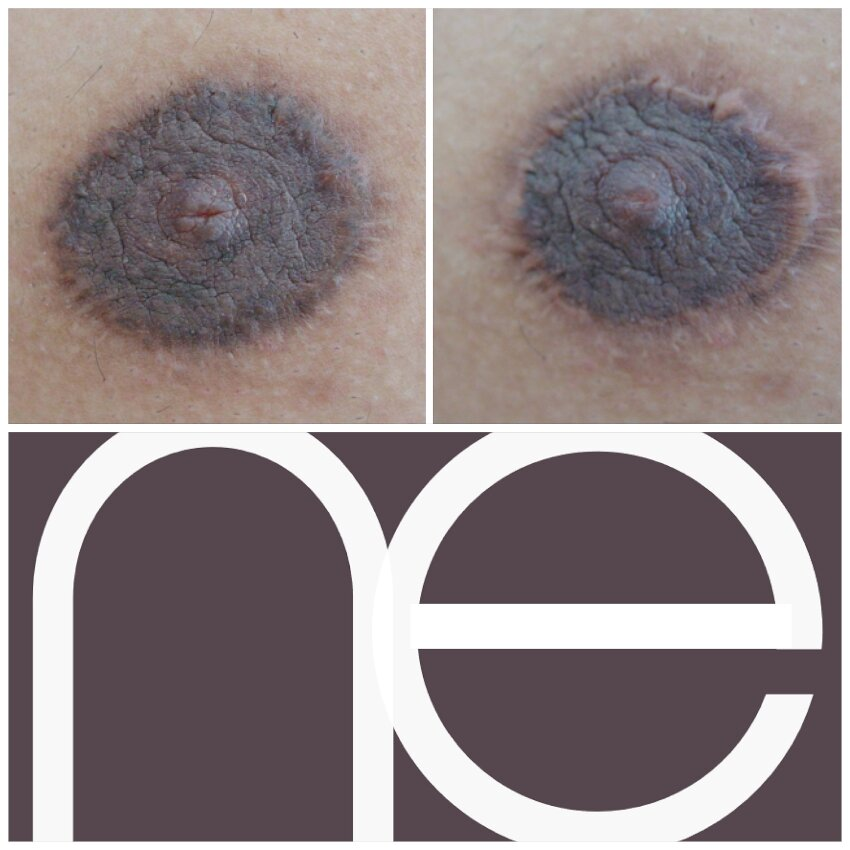 Natural Enhancement Semi Permanent Areola Before And After
