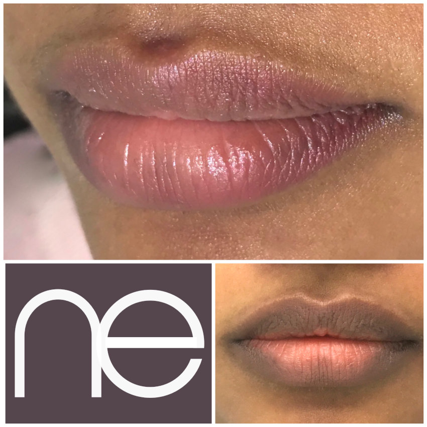 Natural Enhancement Semi Permanent Lips Before And After