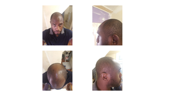 Hair loss photo right before transplant
