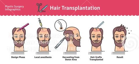 Hair transplantation diagram