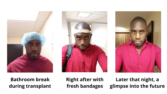 During the day of my fue hair transplant with Bosley