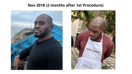 2 months after hair transplant