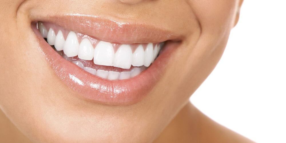 Invisalign Huddersfield Expert Talks You Through the Benefits of Clear Braces!