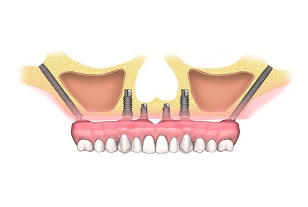 Dental Phobia Certified