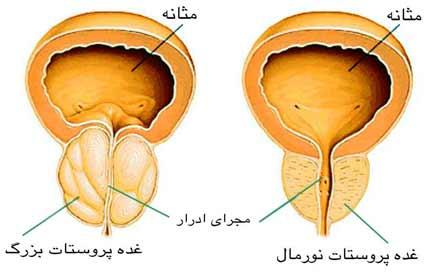 پروستات نورمال و غده پروستات بزرک شده