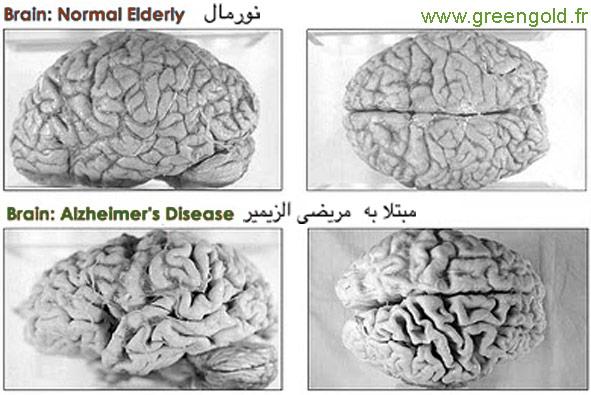 مغزمریض الزیمر